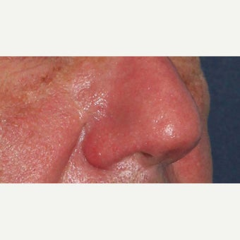 61 year old man treated with CO2 Laser for rhinophyma 1783457