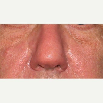 61 year old man treated with CO2 Laser for rhinophyma after 1783457