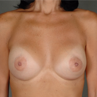 25-34 year old woman treated with Breast Augmentation after 3287015