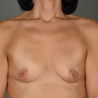 25-34 year old woman treated with Breast Augmentation before 3287015