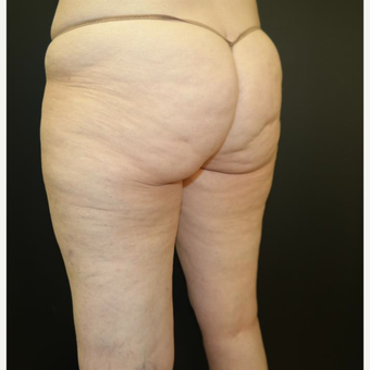 55-64 year old woman treated with CoolSculpting after 2701199