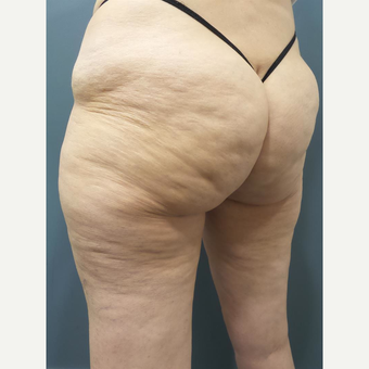 55-64 year old woman treated with CoolSculpting before 2701199