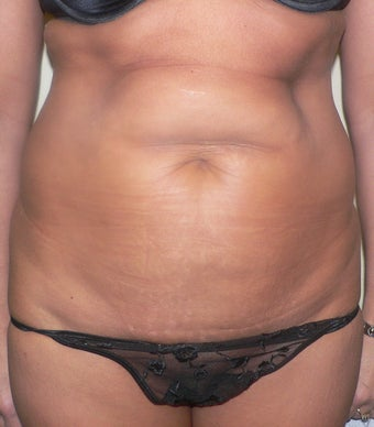 47 year old woman has Tummy Tuck before 990602