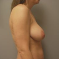 35-44 year old woman treated with Breast Lift before 3122310