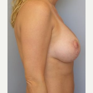 35-44 year old woman treated with Breast Lift after 3122310
