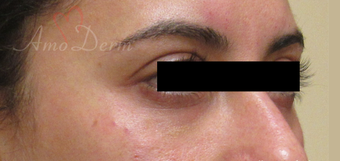 35-44 year old woman treated with Restylane after 3835938