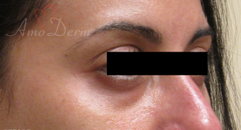 35-44 year old woman treated with Restylane before 3835938