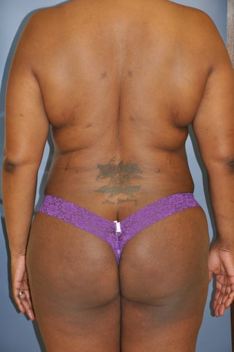 Laser Liposuction after 515280