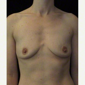 36 year old woman treated with Breast Augmentation before 3103607
