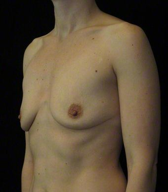 36 year old woman treated with Breast Augmentation 3103607