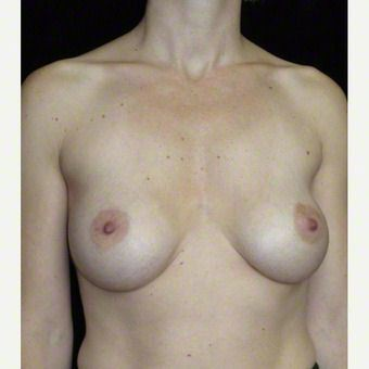 36 year old woman treated with Breast Augmentation after 3103607