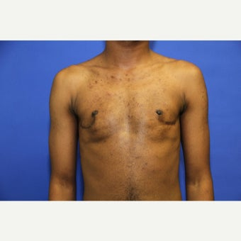 25 year old man treated with FTM Chest Masculinization Surgery after 1969115