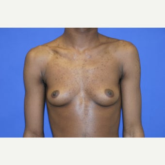 25 year old man treated with FTM Chest Masculinization Surgery before 1969115
