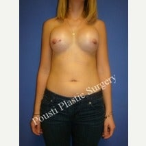 25-34 year old woman treated with Mentor Breast Implants after 2454819