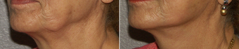 55-64 year old woman treated with Chin Liposuction