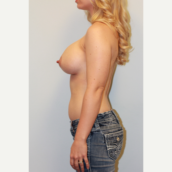 18-24 year old woman treated with Breast Augmentation after 3027366