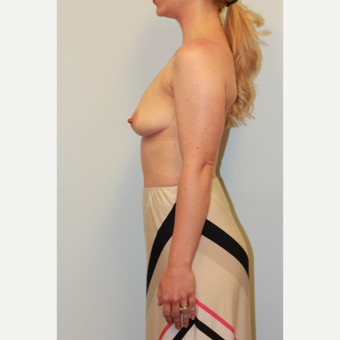 18-24 year old woman treated with Breast Augmentation before 3027366