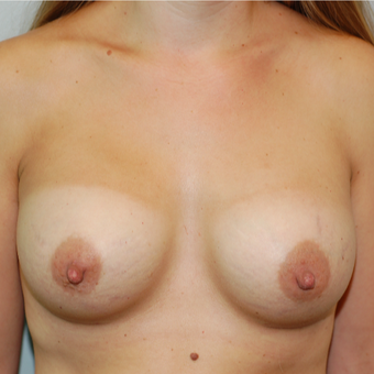 25-34 year old woman treated with Breast Augmentation after 3129168
