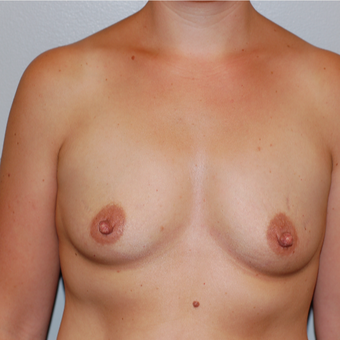 25-34 year old woman treated with Breast Augmentation before 3129168