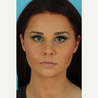 25-34 year old woman treated with Rhinoplasty before 3629314