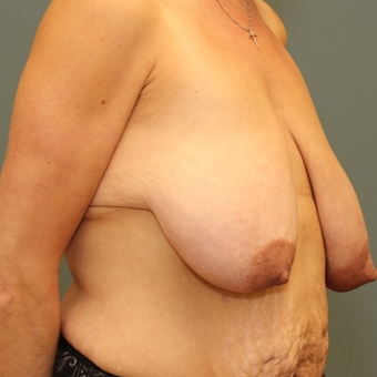 35-44 year old woman requesting Breast Lift before 3346488
