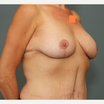 35-44 year old woman requesting Breast Lift after 3346488