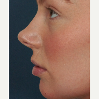 18-24 year old woman treated with Lip Augmentation before 3244982