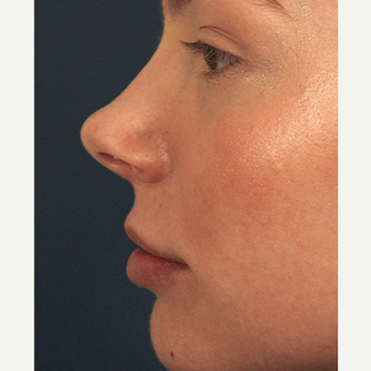 18-24 year old woman treated with Lip Augmentation after 3244982