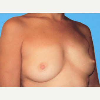 Breast Augmentation before 3732663