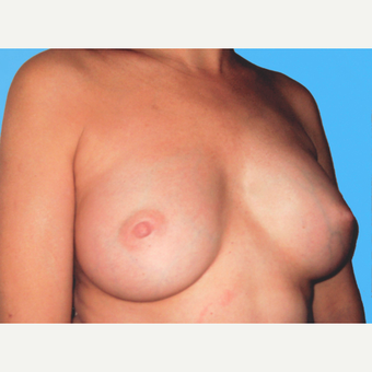 Breast Augmentation after 3732663