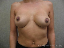 Breast Implant Revision before 1123893