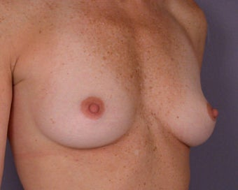 Breast Augmentation before 281419