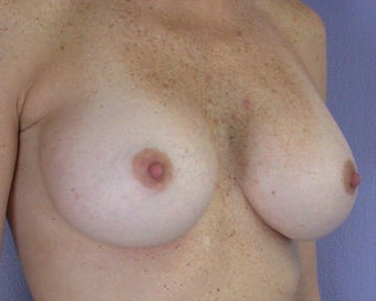 Breast Augmentation after 281419