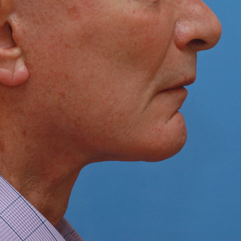 Gentleman in his high 70s almost 3 years after necklift after 3618527