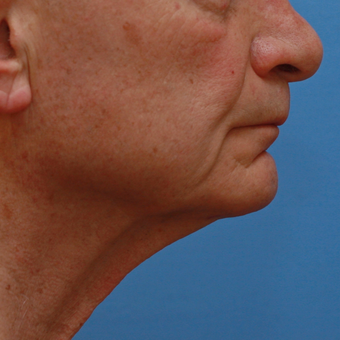 Gentleman in his high 70s almost 3 years after necklift before 3618527