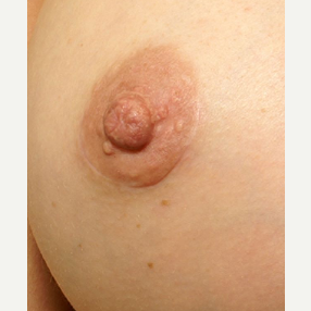 25-34 year old woman treated with Nipple Surgery after 3072246