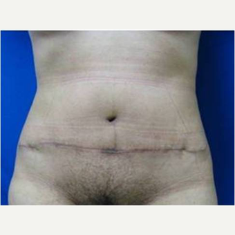 46 year old woman treated with Tummy Tuck after 3726890