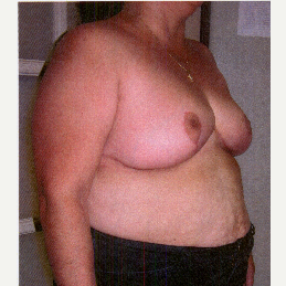 45-54 year old woman treated with Breast Reduction after 3032916