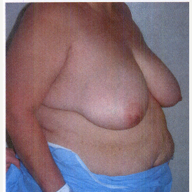 45-54 year old woman treated with Breast Reduction before 3032916