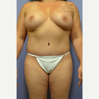 35-44 year old woman treated with Mommy Makeover after 3391847