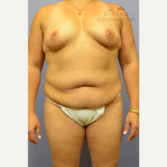 35-44 year old woman treated with Mommy Makeover before 3391847