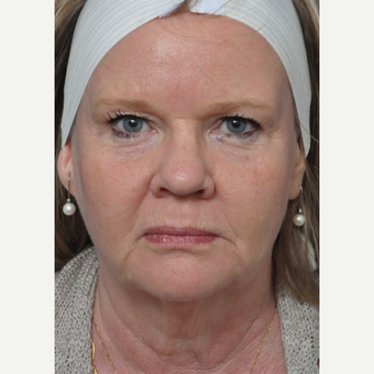 45-54 year old woman treated with Facelift before 3441173