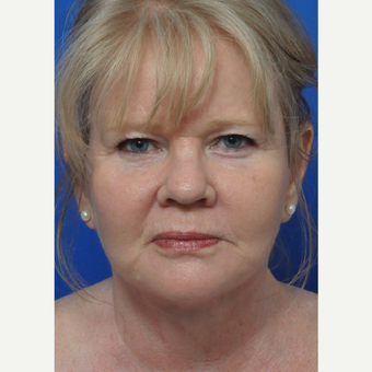 45-54 year old woman treated with Facelift after 3441173