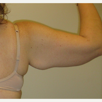 35-44 year old woman treated with Arm Lift before 3411449