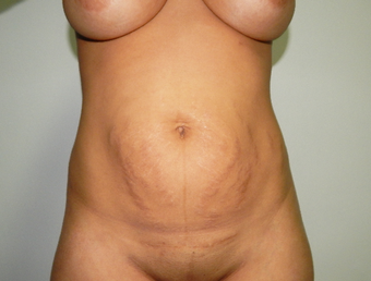 25-34 year old woman treated with Tummy Tuck before 3445912