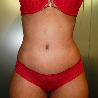 25-34 year old woman treated with Tummy Tuck after 3445912