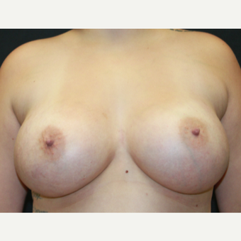 18-24 year old woman treated with Breast Implants after 3225604
