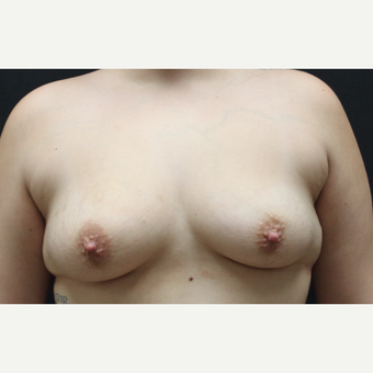 18-24 year old woman treated with Breast Implants before 3225604