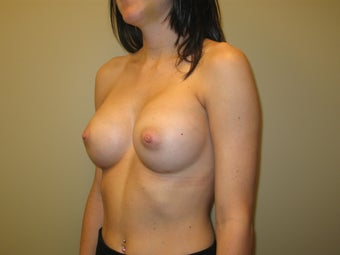 25-34 year old woman treated with Breast Implants 2907305