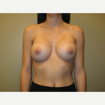 25-34 year old woman treated with Breast Implants after 2907305